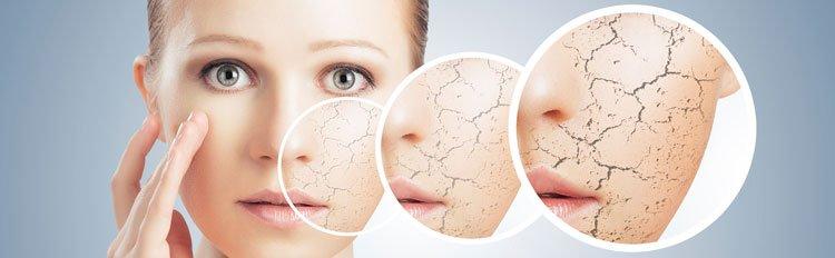 Маски для сухой кожи в домашних условиях