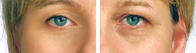 Кремы от морщин вокруг глаз в домашних условиях