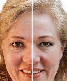 Кремы от морщин для кожи вокруг глаз