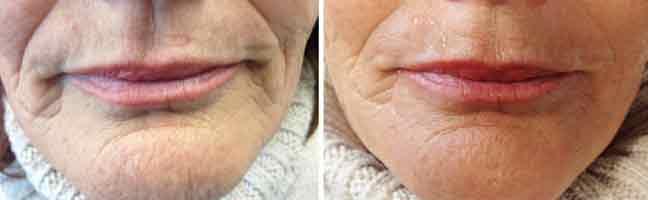 Las contraindicaciones de lavado de cara