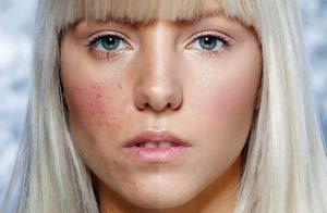 Польза солкосерила для лица